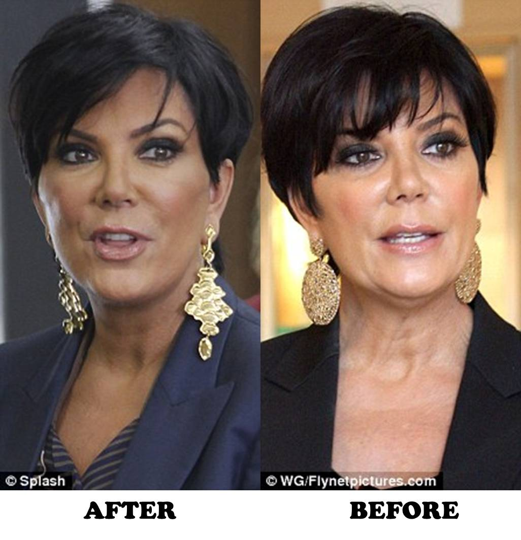 Kris Jenner before and after plastic surgery (image hosted by tvsmacktalk.com)